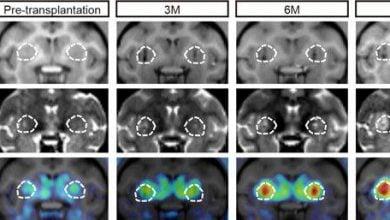Photo of امکان درمان بیماری پارکینسون به کمک سلولهای بنیادی