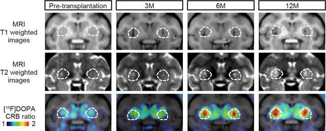 امکان درمان بیماری پارکینسون به کمک سلولهای بنیادی - اخبار زیست فناوری