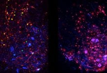 Body's own defense against ALS actually drives disease progression at later stages - اخبار زیست فن