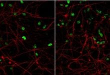 Cell model of the brain provides new knowledge on developmental disease - اخبار زیست فن