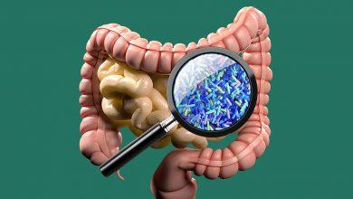 Photo of میکروب های روده و جلوگیری یا تاخیر از دیابت نوع 1