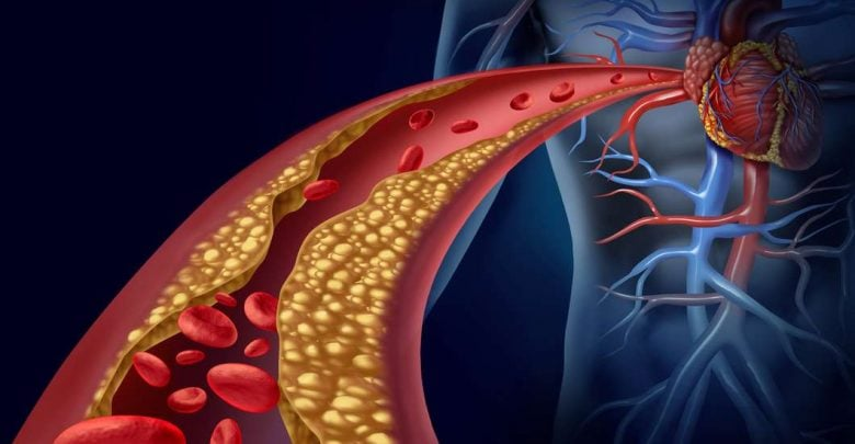 Diabetes and heart disease linked by genes, reveals Penn-led study - اخبار زیست فن