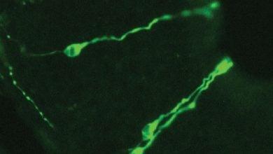 Photo of گیرنده های ایمنی در بینی موش