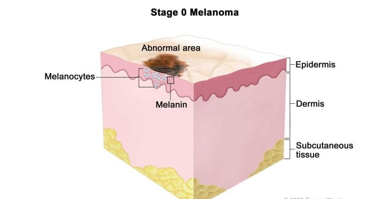 Link established between a molecular driver of melanoma and novel therapeutic agent - اخبار زیست فن