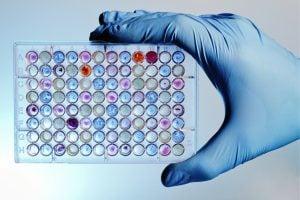 Photo of تجزیه و تحلیل آسان پروتئین