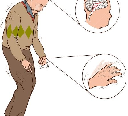 New diagnostic tool spots first signs of Parkinson's disease - اخبار زیست فن