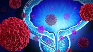 Photo of کاهش خطر ابتلا به سرطان پروستات توسط غربالگری PSA