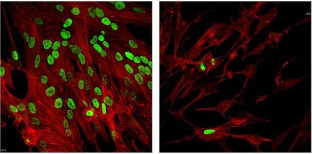 Scientists Look to Epigenetics to Thwart Viruses - اخبار زیست فن