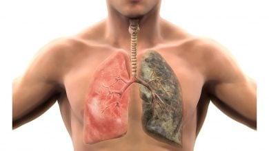 Photo of سیگار کشیدن سلول های ریه را تغییر می دهد