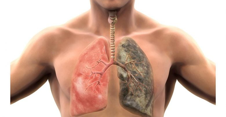 Smoking slowly changes lung cells to increase the odds for cancer - اخبار زیست فن