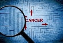 هزینه های تحمیلی سرطان - اخبار زیست فناوری