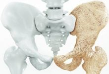 Photo of شناسایی ژنهای مؤثر در پوکی استخوان