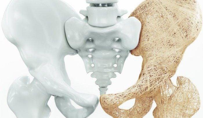 شناسایی ژنهای مؤثر در پوکی استخوان - اخبار زیست فناوری