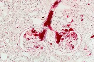 Photo of طول تلومر میتواند ریسک سرطان کلیه را در بیماران VHL پیشبینی کند