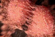 Photo of فناوری جدید ایمنیدرمانی برای سرطان پروستات