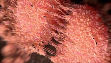 فناوری جدید ایمنیدرمانی برای سرطان پروستات - اخبار زیست فناوری
