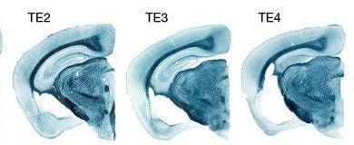 Photo of نقش دوگانه عامل خطر «APOE4» در ابتلا به بیماری آلزایمر