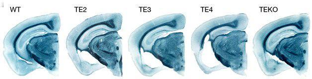 نقش دوگانه عامل خطر «APOE4» در ابتلا به بیماری آلزایمر - اخبار زیست فناوری