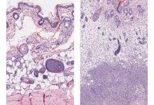شناسایی دو ژن مرتبط با عفونتهای مرگبار استرپتوکوکوس - اخبار زیست فناوری
