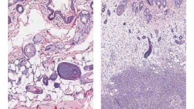 Photo of شناسایی دو ژن مرتبط با عفونتهای مرگبار استرپتوکوکوس