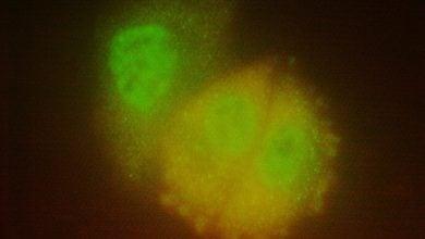 Photo of مغلوب سازی ژنهای بدنام Ras با داروهای جدید سرطان پستان