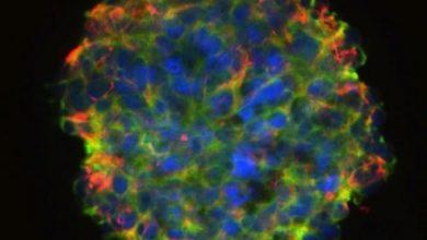 استفاده از سلولهای بنیادی اهدا کننده برای درمان آسیب نخاعی - اخبار زیست فناوری