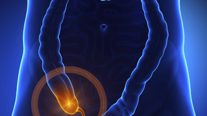 عدم درمان آپاندیسیت باعث افزایش خطر مرگ میشود - اخبار زیست فناوری