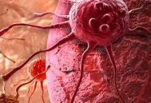 Photo of تشخیص سرطان پروستات با گیرنده آندروژن