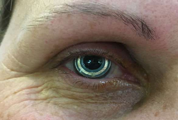 Clinical study success for novel contact lens device aimed to improve glaucoma treatment - اخبار زیست فن