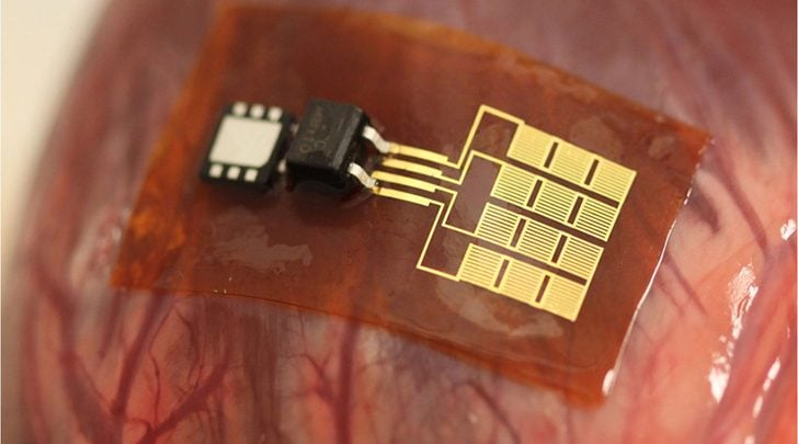 Researchers get straight to the heart of piezoelectric tissues - اخبار زیست فن