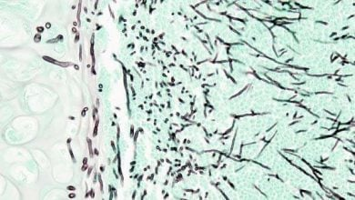 Photo of توسعه داروهای ضد قارچی