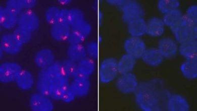 Photo of چگونگی خاموش شدن کروموزوم دوم X زنان