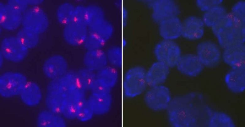 Study shows how female immune cells keep their second X chromosome shut off - اخبار زیست فن