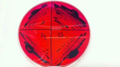Photo of انتشار مقاومت آنتیبیوتیکی از طریق خاک
