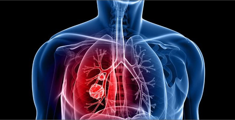 تکامل تومور در سرطان ریه و فرار از سیستم ایمنی به واسطه تغییرات ژنتیکی - اخبار زیست فناوری