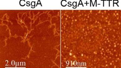 Photo of کشف پروتئین مقابله کننده با مقاومت آنتیبیوتیکی