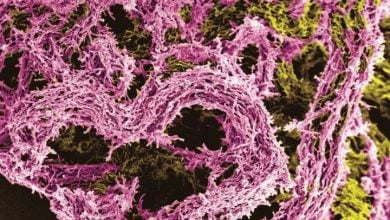Photo of کشف مکانیسم جدید تعمیر DNA در بیماری سل