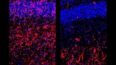 Photo of نقش هورمون تیروئید در رشد مغز