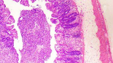 Photo of فهم جدید در مورد انتشار مولکول های مربوط به بیماری های التهابی