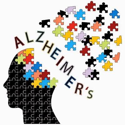 شناسایی عامل جدید در پاتوژنز بیماری آلزایمر - اخبار زیست فناوری