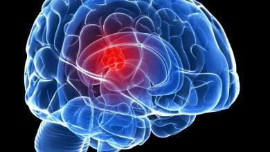 Photo of ضعف تومورهای مغزی اعتیاد به اسید آمینه مشترک است