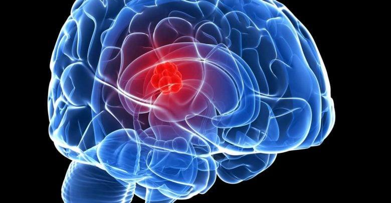 ضعف تومورهای مغزی اعتیاد به اسید آمینه مشترک است - اخبار زیست فناوری