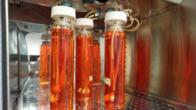 Photo of ساخت رگهای خونی زیستی با استفاده از مهندسی بافت