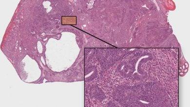 Photo of سرطان بیضه، بسیار حساس به واکنش شیمیایی