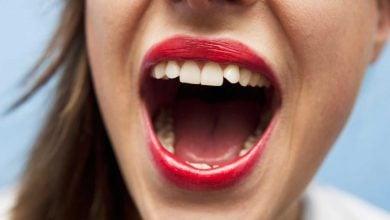 Photo of بیماریهای رودهای و باکتریهای دهانی