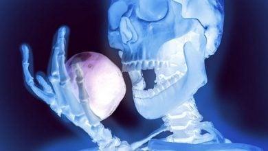 رابطه استخوانها با اشتها و متابولیسم-زیست فن