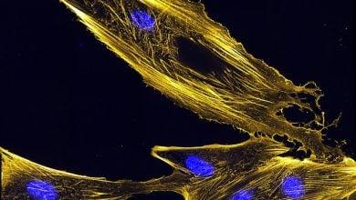 Photo of میکروسکوپ زنده سلولی نشان می دهد که چگونه جنبش سلولی رانده می شود