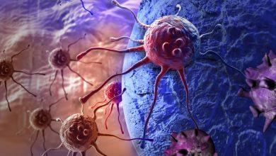 Photo of نتایج حاصل از مطالعه ارائه مزیت دیگری برای مهار کننده های PARP در درمان سرطان سینه پیشرفته