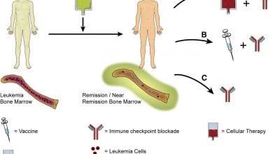 Photo of مطالعه بررسی استفاده از مهارکننده های بازرسی پس از اهدا پیوند سلول های بنیادی