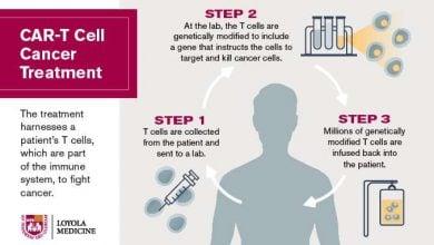 Photo of Landmark CAR-T cancer study published